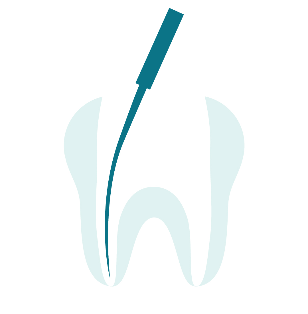 ROOT CANAL 101: WHAT IS A ROOT CANAL & DO YOU NEED ONE